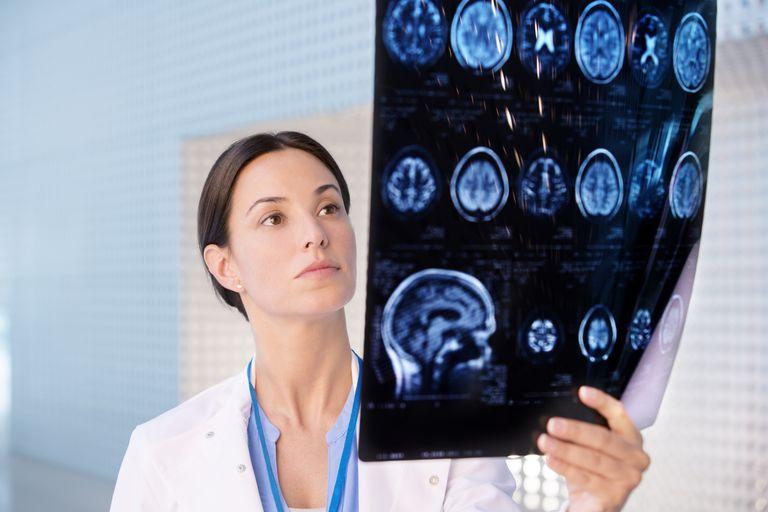 Neurologists