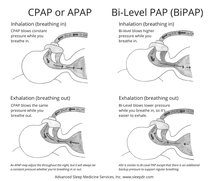 Why Would a BiPAP Machine be a Good Fit for Me?