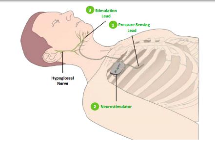 Tongue nerve Stimulation